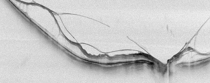 FullRange Retina - SOLIX - Optovue