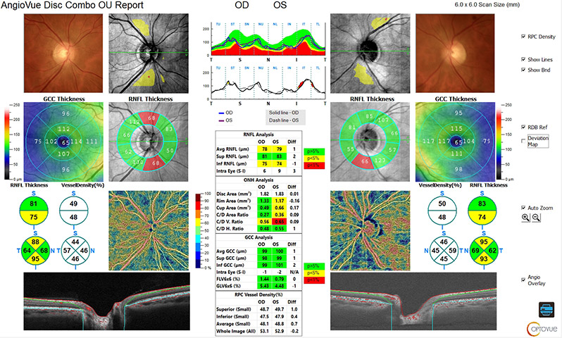 Glaucome - analyse du nerf optique - SOLIX