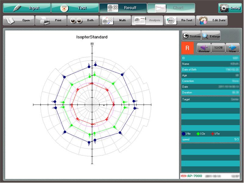 Périmétrie cinétique - AP-7000