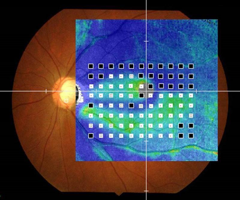 Dépistage fin des défauts de champ visuel - AP-7000