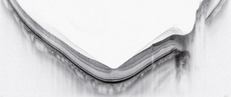 Scan Enhanced HD Line et quantification de l'épaisseur choroïdienne - ANGIOVUE - Optovue