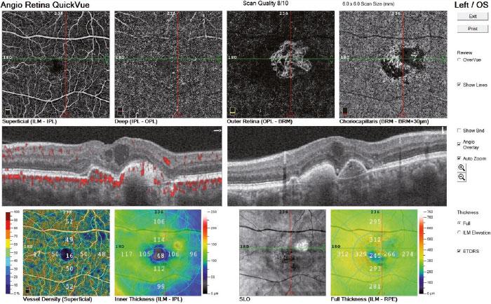 Cartographie d'épaisseur rétinienne avec comparaison à la base de donnée normative dans le cas d'une membrane épirétinienne - ANGIOVUE - Optovue