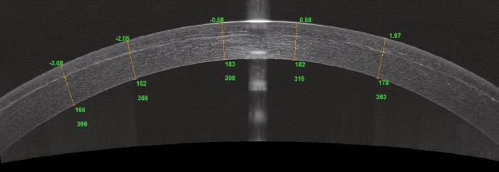Chirurgie SMILE (Small Incision Lenticule Extraction) - ANGIOVUE - Optovue