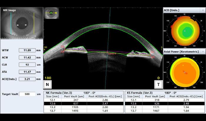 Suivi post-opératoire ICL - CASIA-2 - Tomey