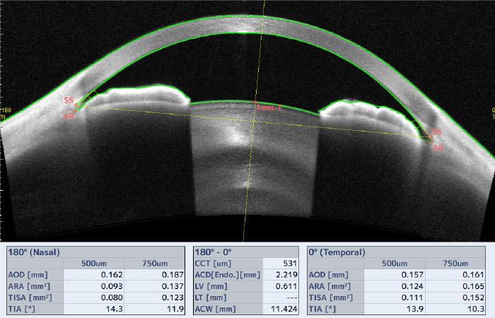 Imagerie angle à angle - CASIA-2 - Tomey
