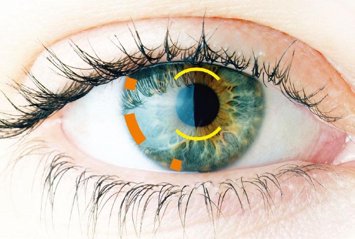 Prévu pour le Femto-Cataracte - GALILEI G6 - Ziemer