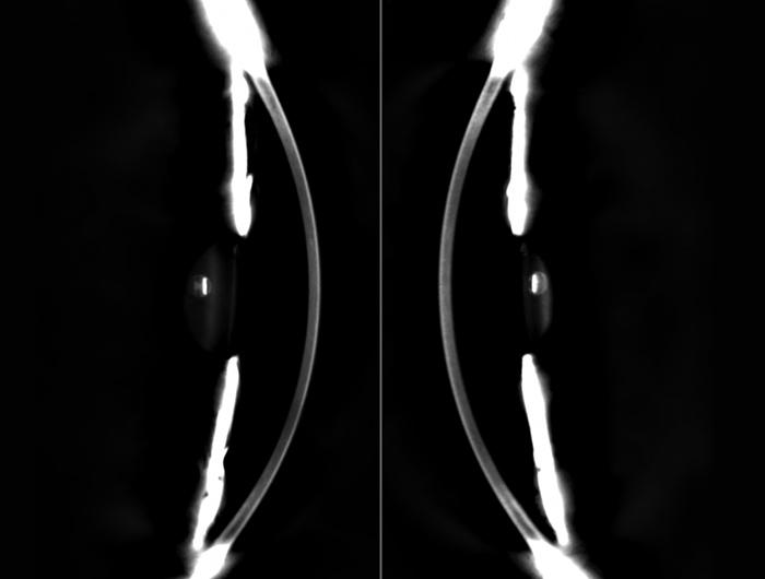 Tomographie Dual-Scheimpflug - GALILEI - Ziemer