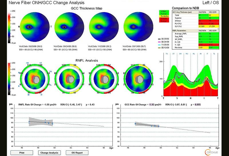 Rapport de progression - IVUE80 - Optovue
