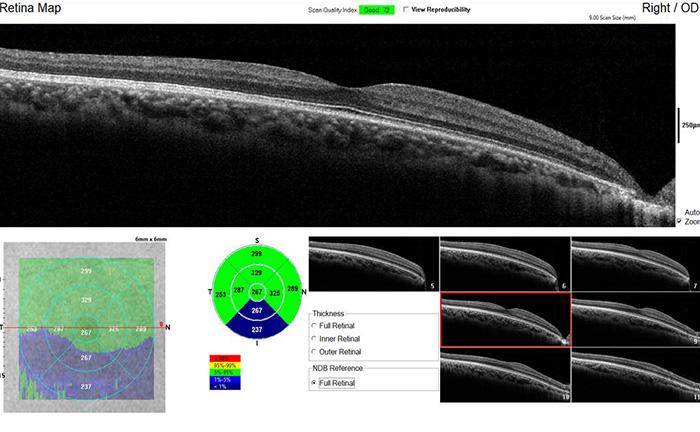 Retina Map - IVUE80 - Optovue