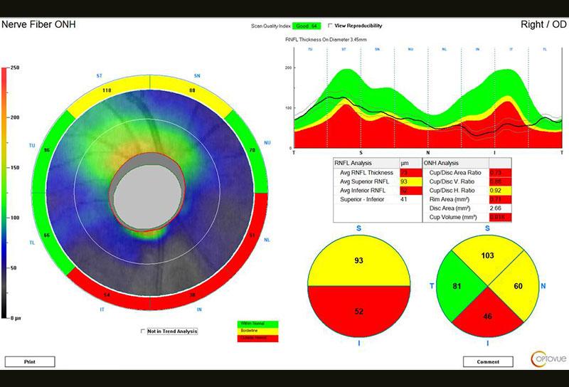Analyse des fibres péripapillaires - IVUE80 - Optovue