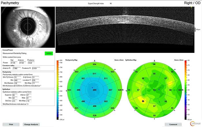 Pachymétrie et mapping épithélial - IVUE80 - Optovue