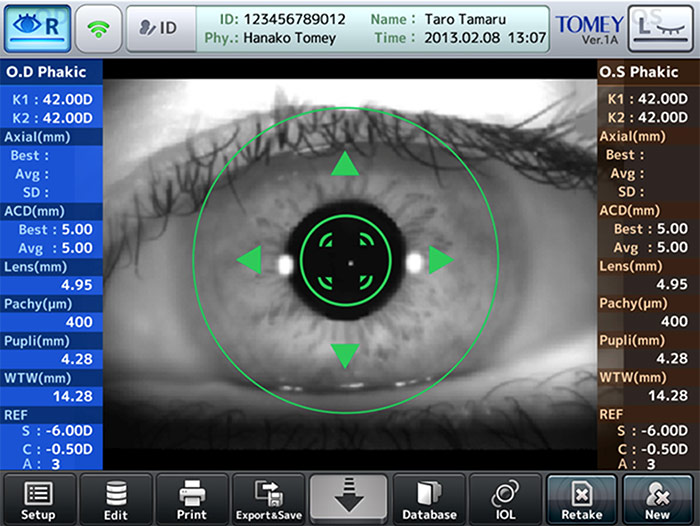 Prise de mesure - OA-2000 - Tomey