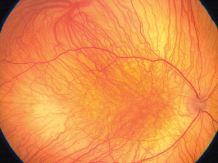 Fond d'œil - PANOCAM SOLO - Visunex