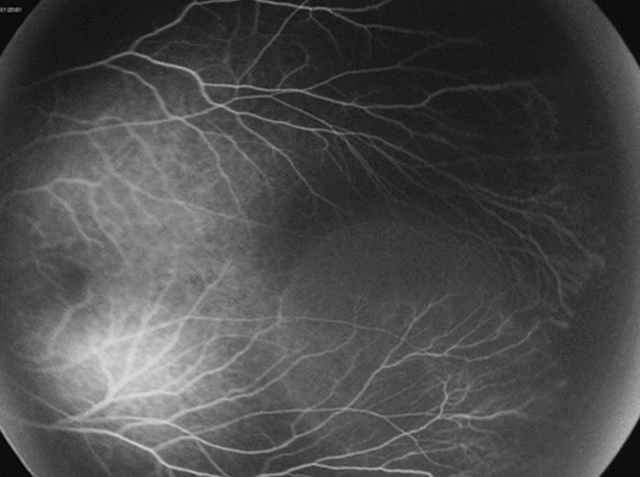 Angiographie - PANOCAM PRO - Visunex