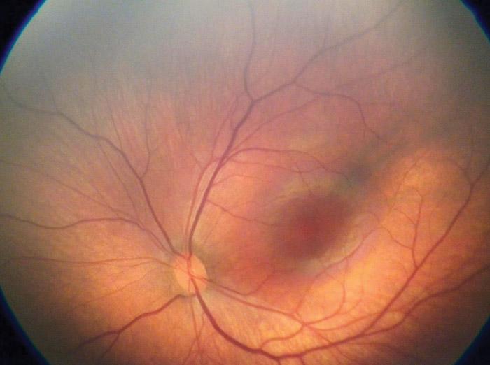 Fond d'œil - PANOCAM PRO - Visunex