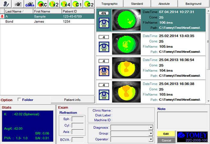 Base de données patients - TMS-4N - Tomey