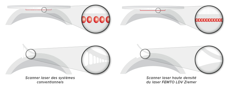 Scanner laser haute densité - FEMTO LDV - Ziemer