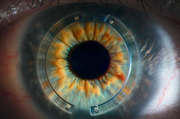 Vue au microscope de deux implants cornéens Intacs® - FEMTO LDV - Ziemer