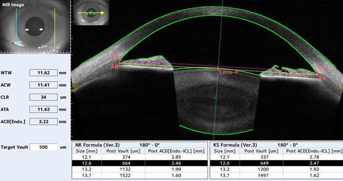 Sizing implant phake ICL - CASIA-2 - Tomey