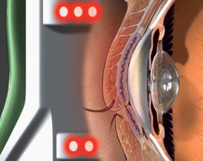 Photobiomodulation - EYE-LIGHT® - Espansione