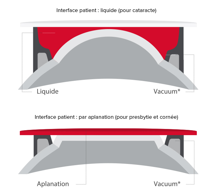 Interface patient - laser Femto LDV Z8 - Ziemer