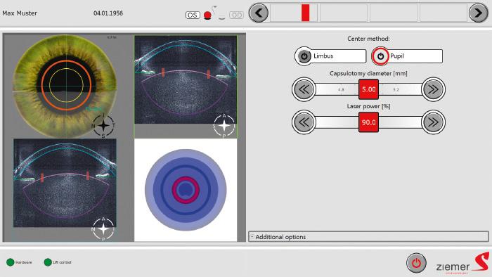Interface OCT intégrée - Laser Femto LDV Z8 - ZIemer