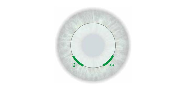 Placement d'incision flexible - Laser - Module CLEAR - Femto LDV Z8 - Ziemer